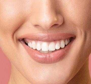 Why Choose Professional Teeth Whitening?